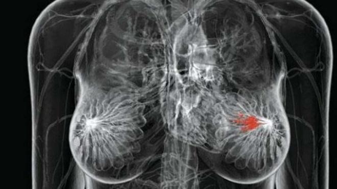 20140201-tumore-al-seno-660x371