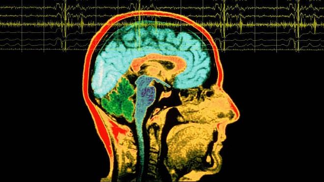 20140203-cervello-tumore-660x371
