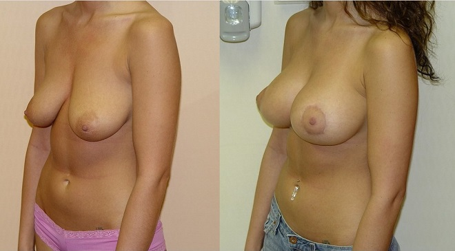 20140401-record-usa-breast_lift-660x365