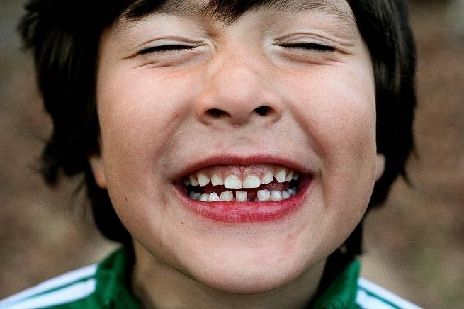 20140723-kids-teeth-655x436