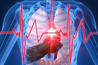 20141020-heart-attack-320x213