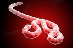20141021-ebola_virus-655x436