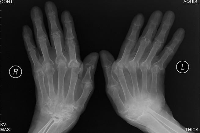 20150605-artrite-reumatoide-655x436